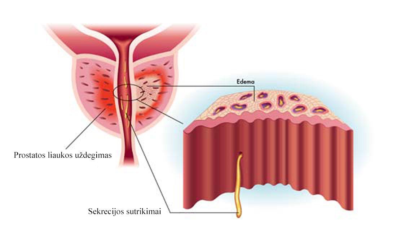 blogos erekcijos po prostatito gydymas antrankiais varpą