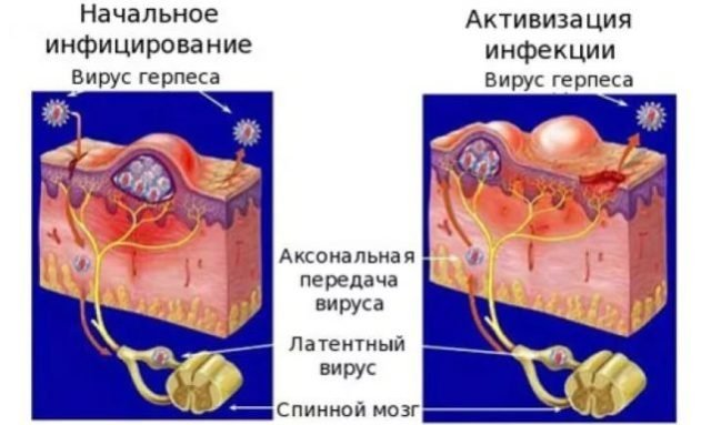 kaip saugiai padidinti lytini organa kas yra vyru varpos ir ju dydziai
