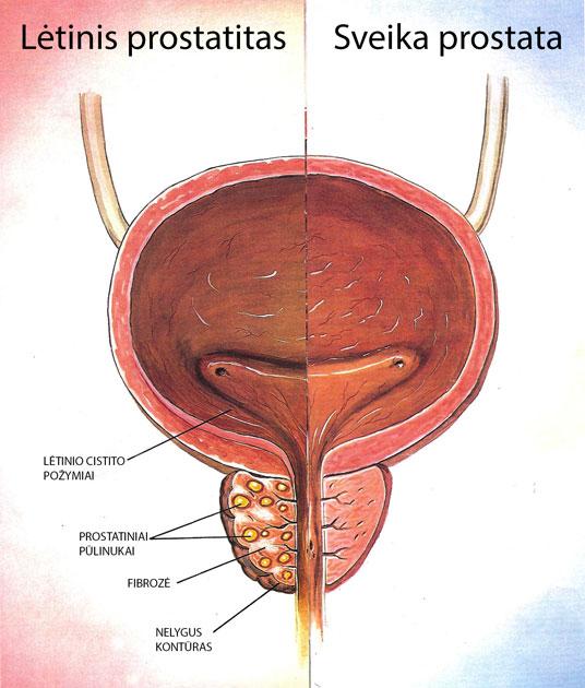 blogos erekcijos po prostatito gydymas priežastis kodėl nėra rytinės erekcijos